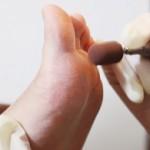 足の裏の角質除去やフットケア!固くなる原因や柔らかくする方法は?