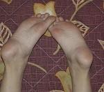 足の裏の画像